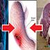 डॉक्टरों की चेतावनी : इस जानवर के मांस का सेवन सड़ा देता आपकी आंत, लग जाते हैं कीड़े