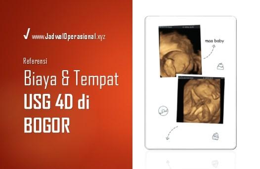 USG 4D di Bogor