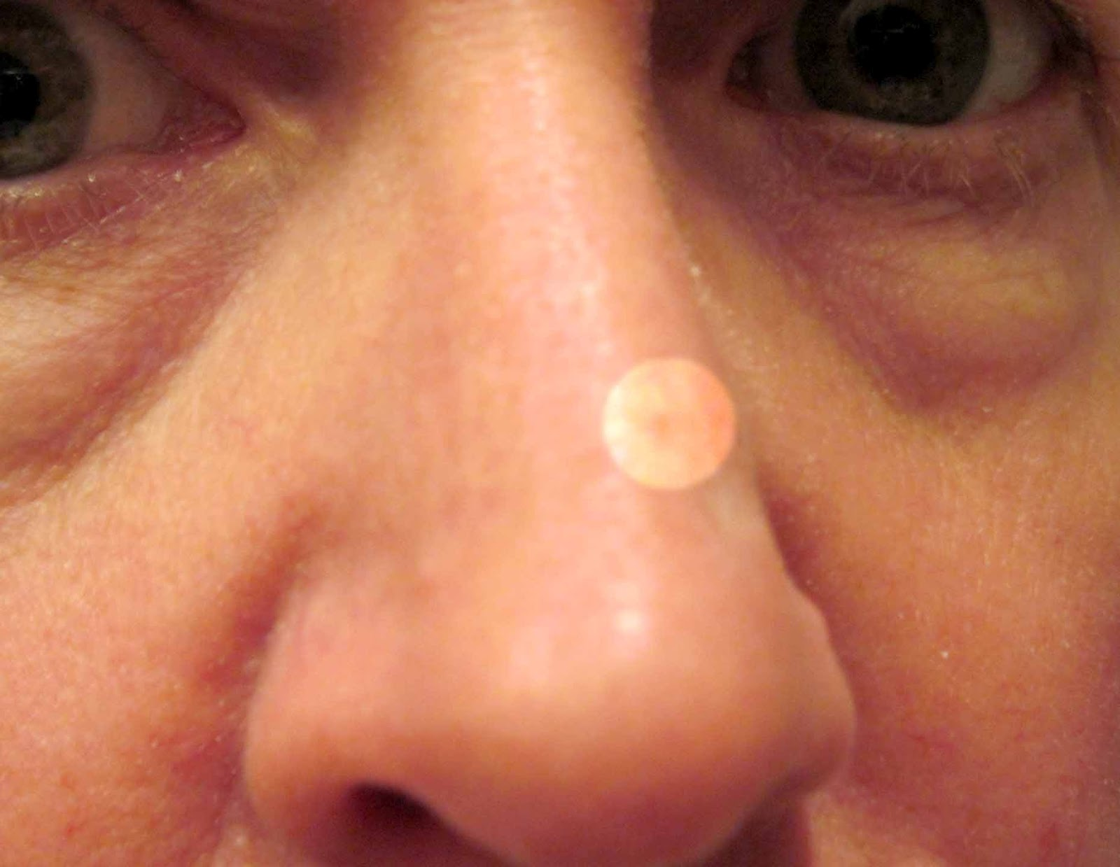 red patch on nose+skin cancer
