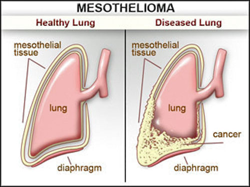 Mesothelioma Prognosis