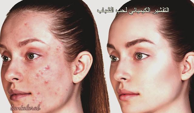 التقشير الكيميائي لحب الشباب Chemical peels for acne