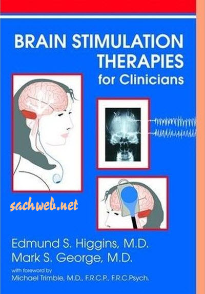 Brain Stimulation Therapies for the Clinician (2008)