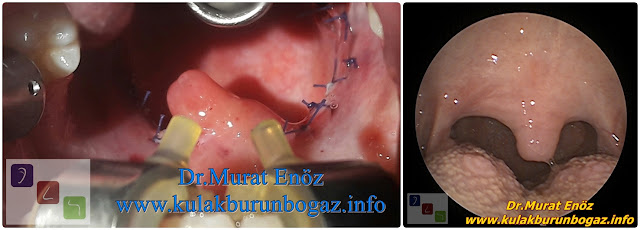 Tonsillectomy Operation in Istanbul