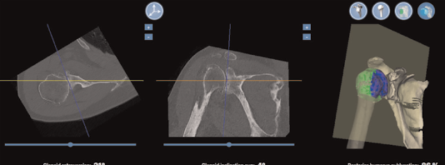 """The B2 glenoid and """"version correction"""" 2"""