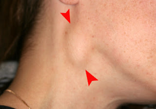 Swelling in the Neck and Face  signs of lung cancer