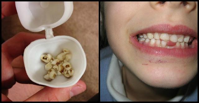 Keep Their Children's Baby Teeth
