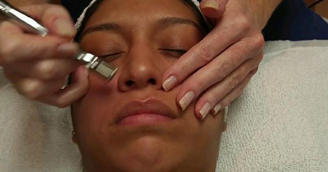 Mikrodermabrasi untuk mengelupas kulit