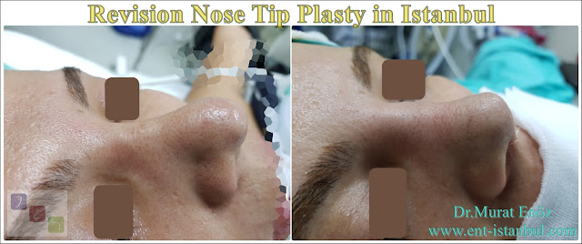 Revision Aesthetic Nose Tip Surgery,Revision Nose Tip Plasty in Istanbul,