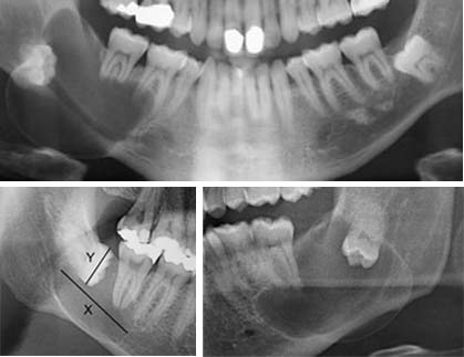 cystic lesion associated with wisdom tooth