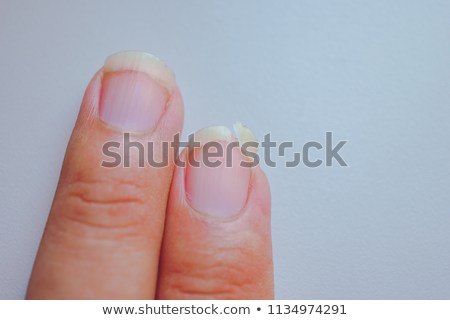 Remedy for Brittle Nails - Healthy Life Hunter
