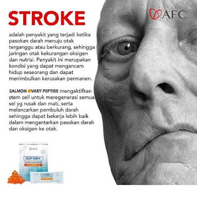 Testimoni SOP 100+ Membantu Mengobati Penyakit STROKE