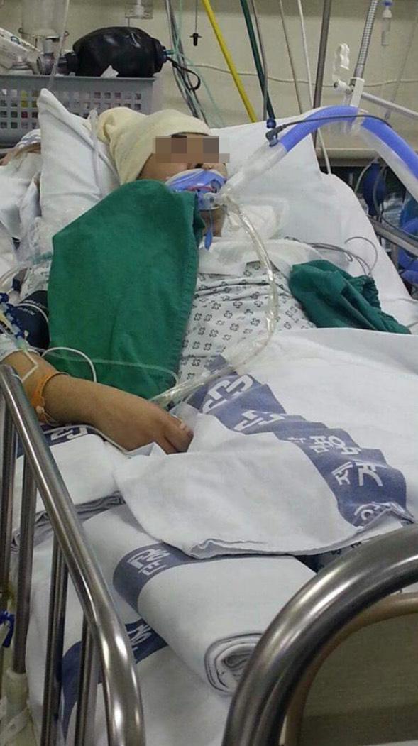 Mati-mati Ingat Sakit Kepala Biasa, Namun Remaja Ini Mati Tiba-tiba Selepas Dua Minggu! Ini Rupanya yang Berlaku.