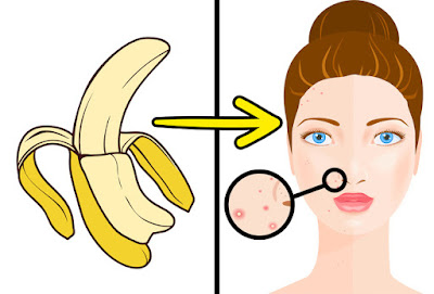 8 Insane Uses Of A Banana Peel