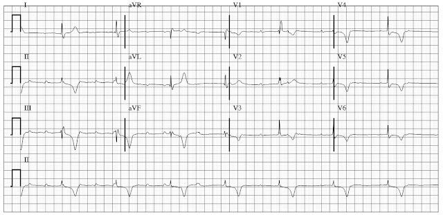Atrial tachycardia with CHB
