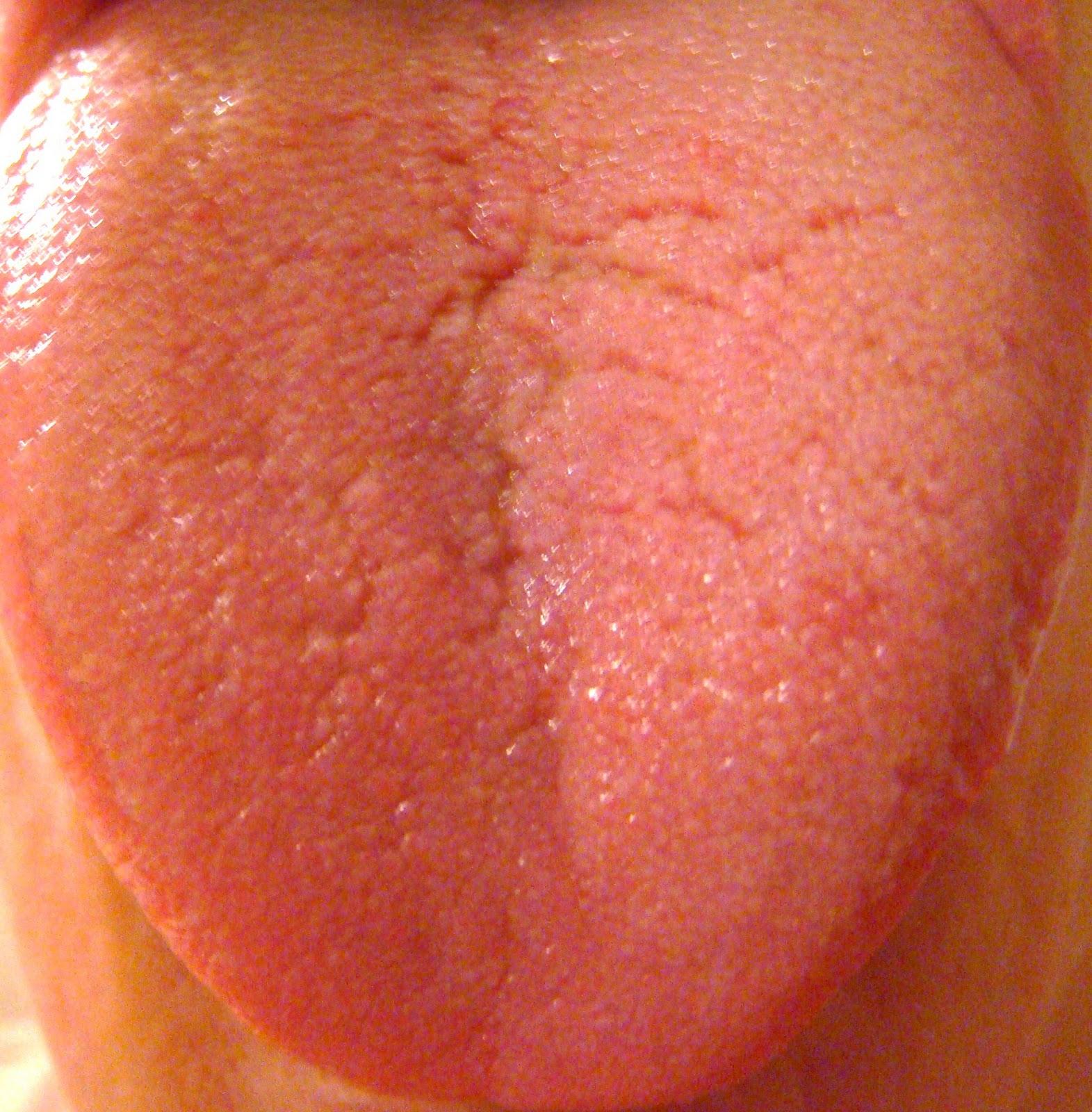 Causas De Candidiasis Oral En Adultos, Sore Tongue Candida