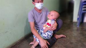 Tinggal di Rumah Kontrakan, Steven Balita Penderita Hidrosefalus di Medan Labuhan Berharap Pada Keajaiban