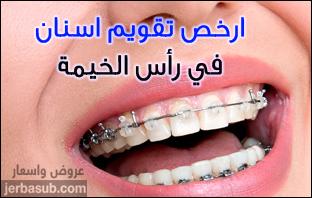 اسعار تقويم الاسنان في راس الخيمة