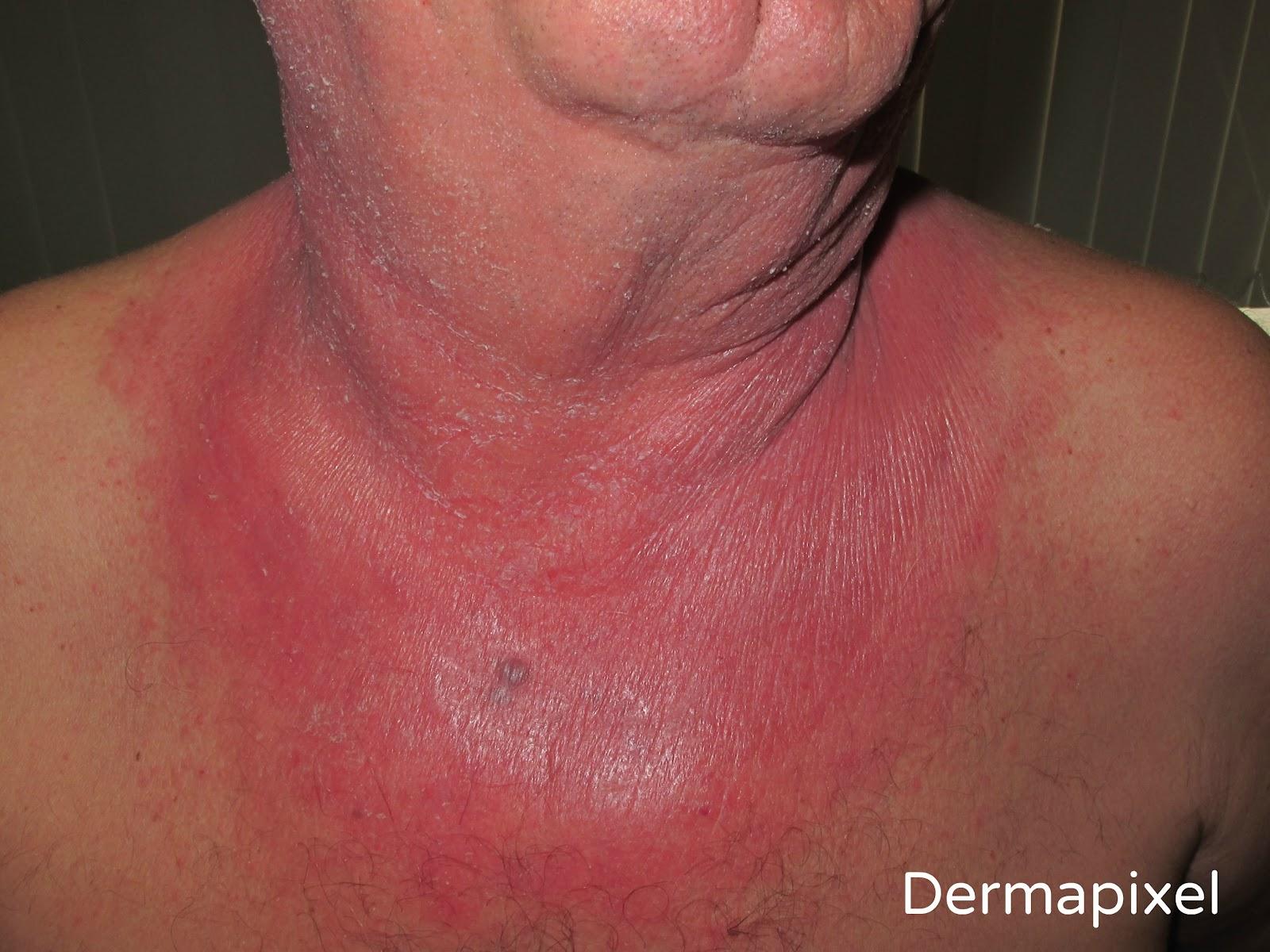 Dermapixel: Me arde el cuello
