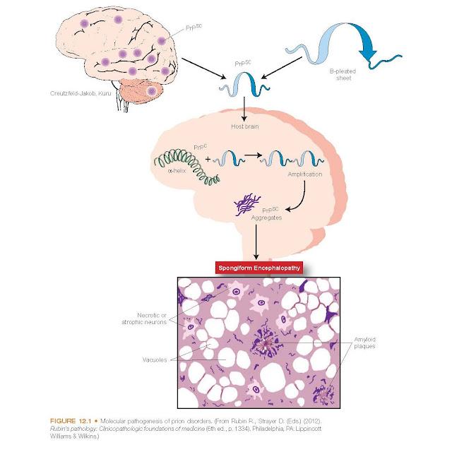 Molecular pathogenesis of prion disorders