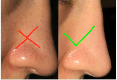 Nose Blackhead Home Remedy, nose blackhead popping, blackhead on nose removal videos, nose blackhead removal videos, blackhead on nose home remedy, blackhead inside nose, blackheads nose and chin, nose blackheads and whiteheads, blackheads nose and cheeks, blackhead on nose won't go away, blackheads on nose won't go away,