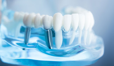 Pros and Cons of clear choice dental implants