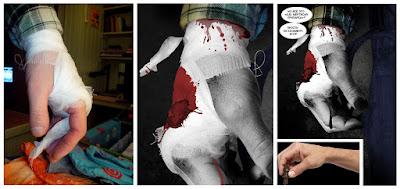 Bandage, arm for Rules of zombie apocalypse #3