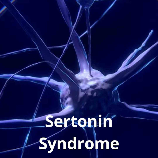 Sertonin Syndrome: symptoms,Cause,Treatment