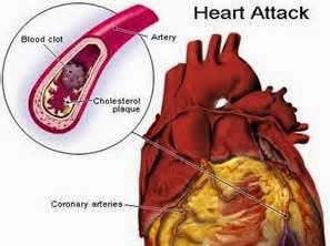 Pertama Kali Kena 'Mild Heart Attack'