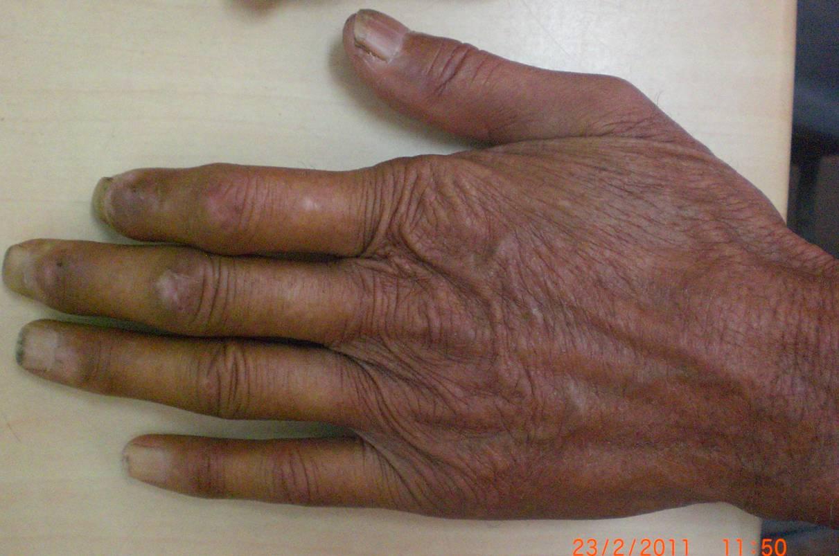 a diphyllobothriasis klinikai útmutatói