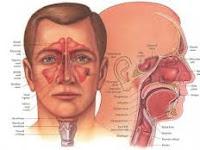 ramuan obat penyakit sinusitis