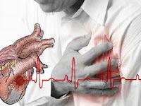 Kenali Beda Gejala Serangan Jantung pada Pria dan Wanita