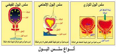 ظاهرة سيلان البول ( خروج نقط من البول بشكل لا إرادي )