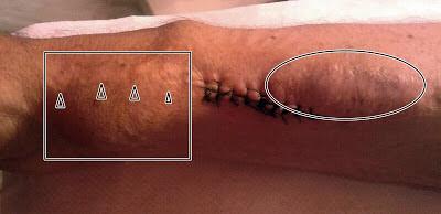 fotografía de fistula arteriovenosa recién intervenida con esquema que realta los puntos de punción