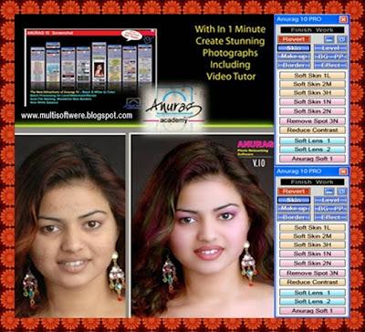 Anurag 10 Pro Without Dongle