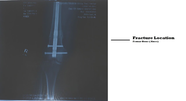 X-ray Right Knee 7-8 weeks after surgery