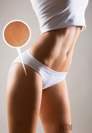 Libera Dalla Cellulite Consigli Naturali Per Eliminare La Cellulite Come Togliere La Cellulite Dalle Gambe In Poco Tempo