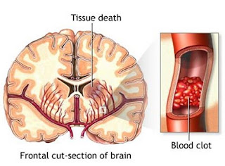 Pengobatan stroke kanan, obat alami untuk orang stroke, cara menyembuhkan penyakit stroke secara tradisional, pengobatan stroke perdarahan, apakah penyakit stroke bisa sembuh, obat stroke terbaru, obat stroke tetes hidung, obat stroke ringan herbal, ramuan obat tradisional untuk stroke, pengobatan stroke jogja, obat ampuh buat stroke