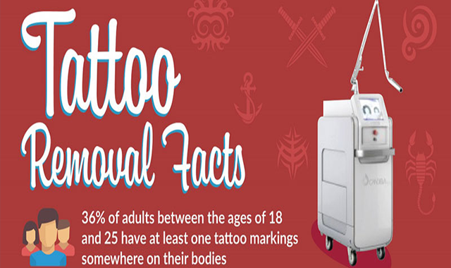 Tattoo Removal Facts #infographic