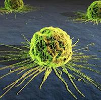 Pengertian Tumor dan Kanker - Klik BBM Blog Pengertian