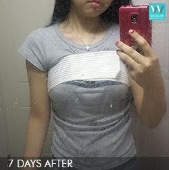 짱이뻐! - Korean Breast Plastic Surgery Result Is Just So Natural