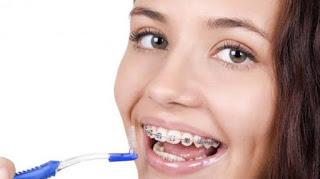 cara merawat gigi berbehel agar tetap putih