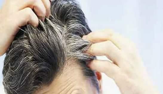 Rambut Beruban