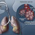 What Is Malignant Mesothelioma?