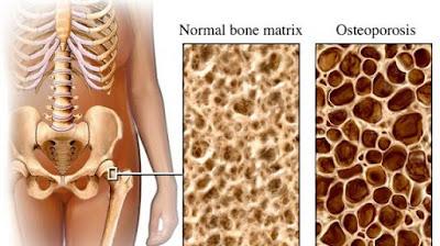 Jangan Abaikan !!! Ayo Cegah osteoporosis Sejak Dini ! BEGINI Caranya! Jangan Sampai kamu Menyesal di Kemudian Hari!