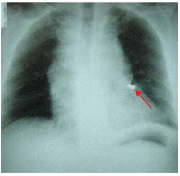 imagem da radiografia de tórax solicitada