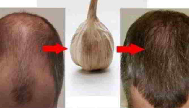 Benefits of Garlic - (Body, Skin, Hair, Nails)