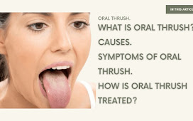 What is Oral thrush and Symptoms of Thrush | 2021