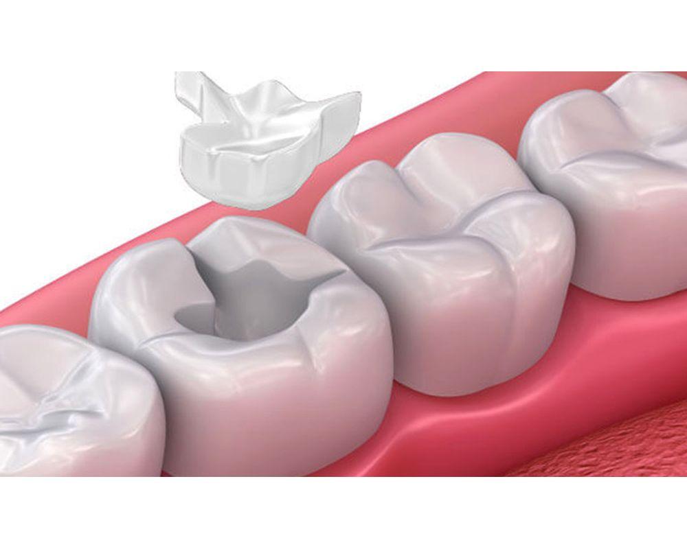 Resina Dental
