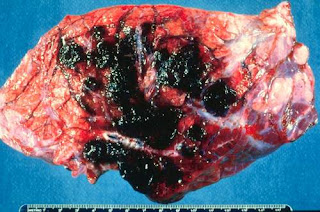 hemagiosarcomas