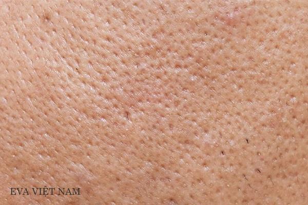 Lỗ chân lông là phụ quan quan trọng của da